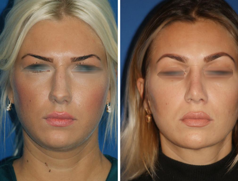 fettsugning ansikte före efter