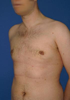 operera bort mansbröst