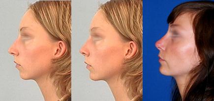 näsoperation före efter